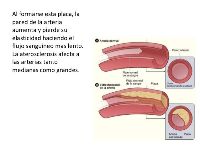 Aterosclerosis Slide 3