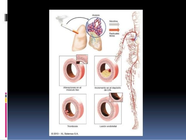 Referencia J. F. GUADALAJARA Cardiología sexta edición. Guía de practica clínica de diagnostico y tratamiento de las disli...