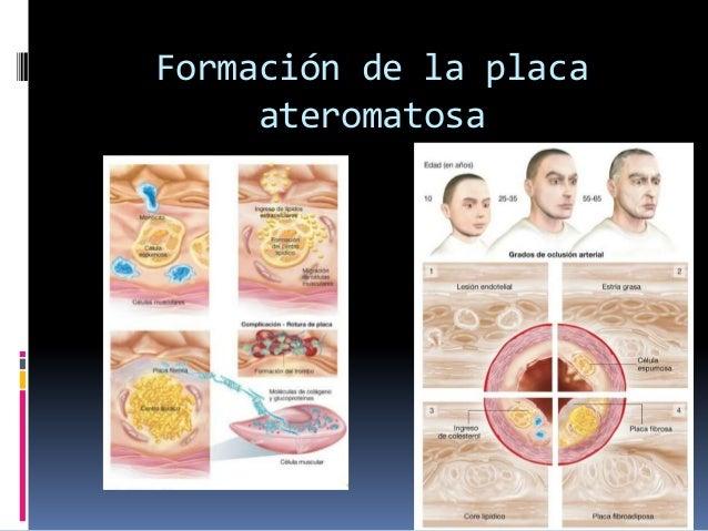 Formación de la placa ateromatosa