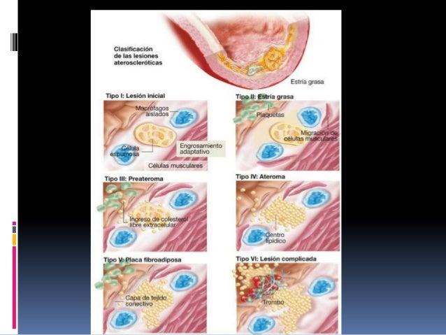 Factores de riesgo  Hipercolesterolemia