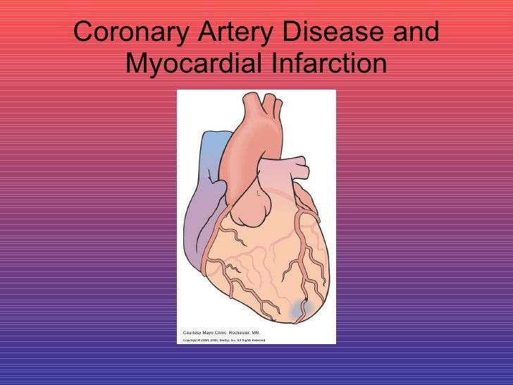 Coronary Artery Disease and Myocardial Infarction