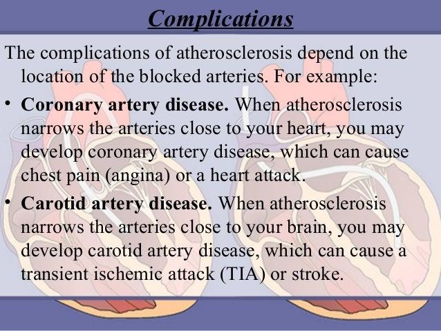 500+ atherosclerosis powerpoint templates w/ atherosclerosis.