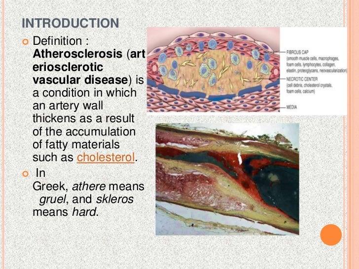 atherosclerosis - pathogenesis, Cephalic Vein