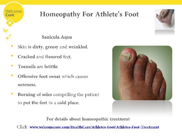 Getting Rid of the Terrible Itch of Athlete's Foot with