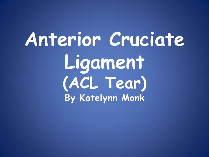 Anterior Cruciate    Ligament    (ACL Tear)    By Katelynn Monk