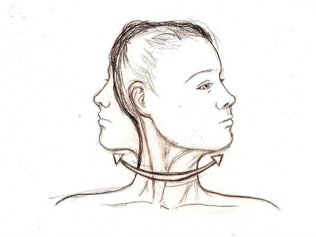 Atlantoaxial and occipital joint