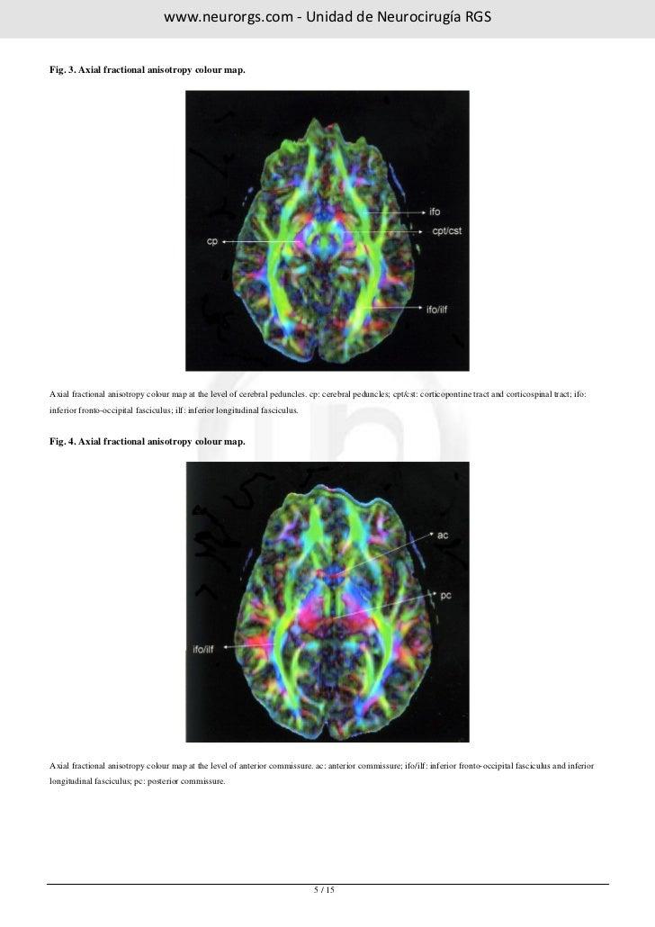 www.neurorgs.net -Atlas of white matter anatomy with fiber tractograp…