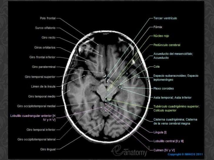 Famoso Radiología Anatomía Del Cerebro Ilustración - Anatomía de Las ...