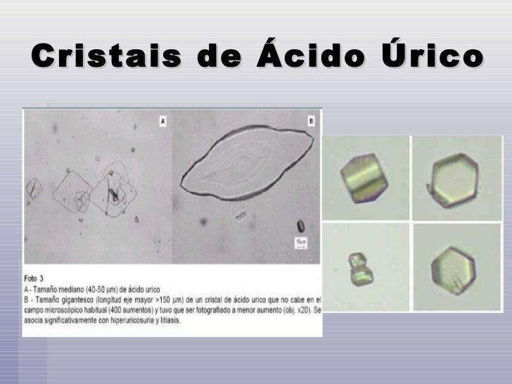 fitoterapia e acido urico problemas que causa el acido urico en nuestro organismo calculos de acido urico causas