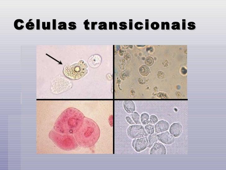 Celulas epiteliais numerosas no exame de urina