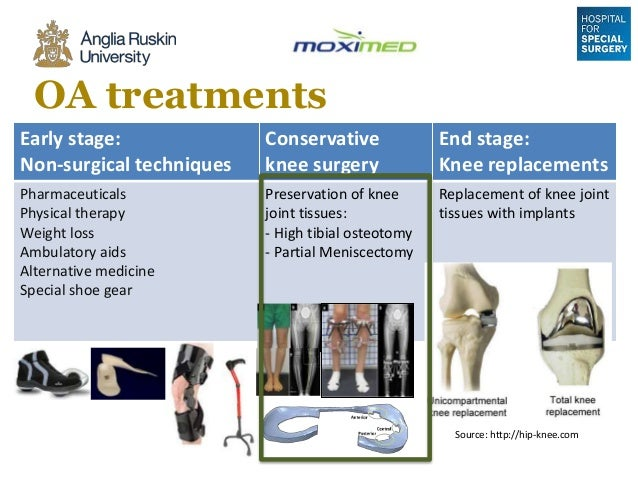 Performance of a Novel Knee Implant to Treat Osteoarthritis Without …