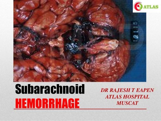 Subarachnoid HEMORRHAGE DR RAJESH T EAPEN ATLAS HOSPITAL MUSCAT