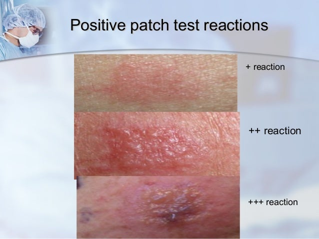 skin patch test food allergy