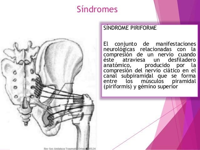 Diagnostico 6 elementos puede basar el diagnóstico del Síndrome piramidal: • Antecedentes de traumatismo en región glútea ...