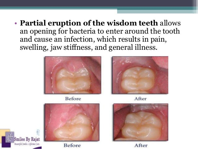 Wisdom Tooth Removal | Oral Surgery | Impacted Tooth Surgery