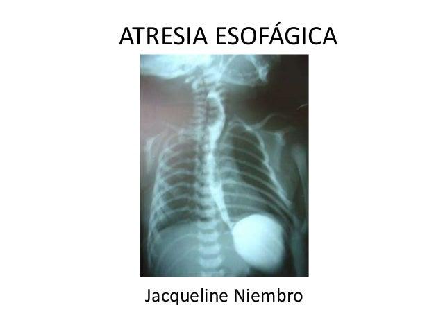 Atresia esofagica pediatria