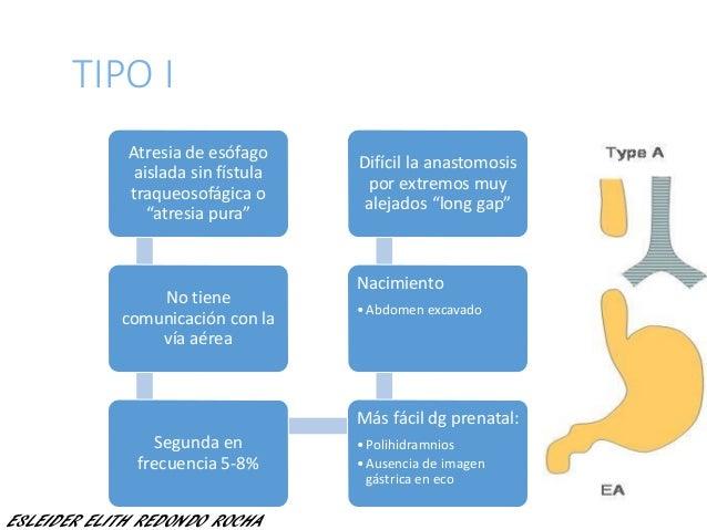 "TIPO I Atresia de esófago aislada sin fístula traqueosofágica o ""atresia pura"" No tiene comunicación con la vía aérea Segu..."