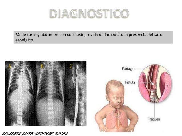 RX de tórax y abdomen con contraste, revela de inmediato la presencia del saco esofágico ESLEIDER ELITH REDONDO ROCHA
