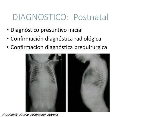 DIAGNOSTICO: Postnatal • Diagnóstico presuntivo inicial • Confirmación diagnóstica radiológica • Confirmación diagnóstica ...