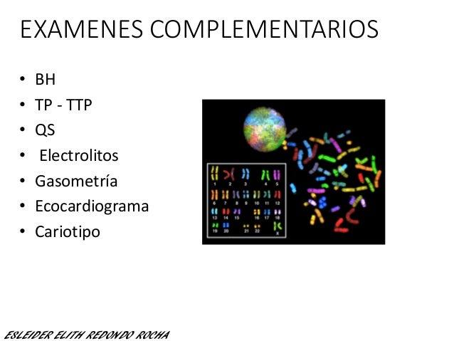 EXAMENES COMPLEMENTARIOS • BH • TP - TTP • QS • Electrolitos • Gasometría • Ecocardiograma • Cariotipo ESLEIDER ELITH REDO...
