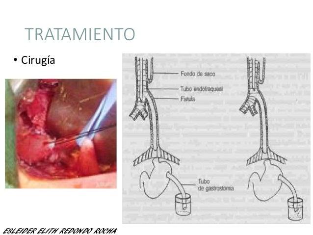 TRATAMIENTO • Cirugía ESLEIDER ELITH REDONDO ROCHA