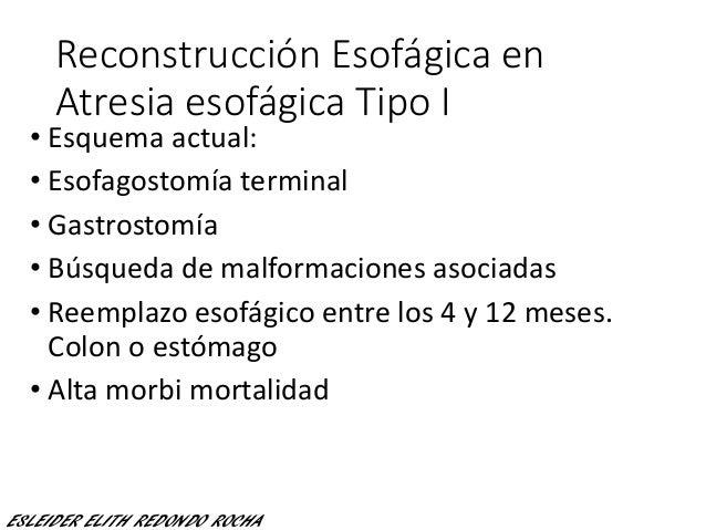 Reconstrucción Esofágica en Atresia esofágica Tipo I • Esquema actual: • Esofagostomía terminal • Gastrostomía • Búsqueda ...