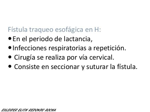 Fístula traqueo esofágica en H: En el periodo de lactancia, Infecciones respiratorias a repetición.  Cirugía se realiza...