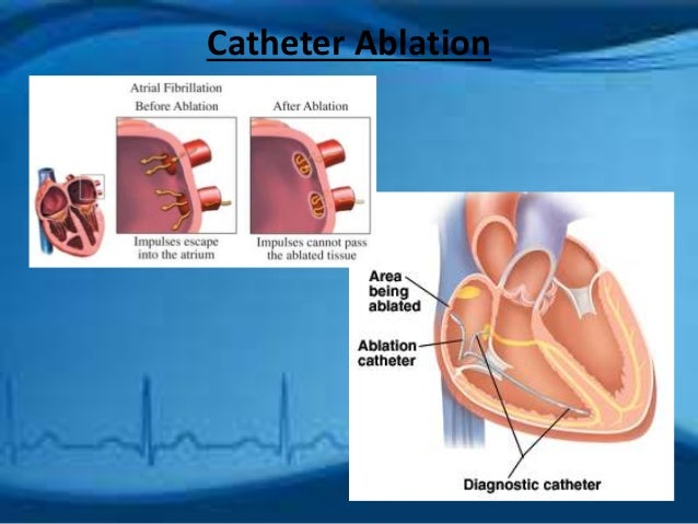 nursing teaching plan on patient with atrial fibrillation By sylvia foley, ajn senior editor atrial fibrillation, the most common chronic cardiac arrhythmia, affects an estimated three to six million americans and can profoundly diminish their quality of life.
