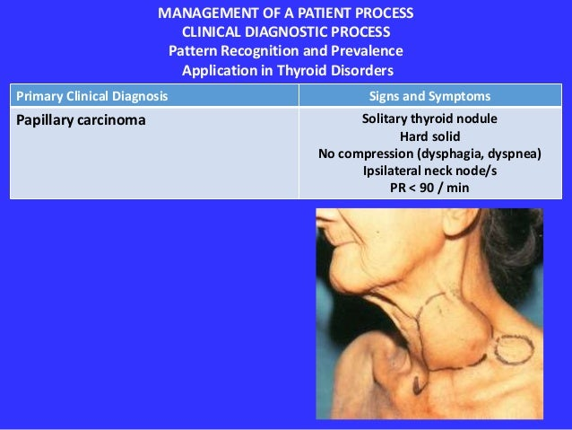 Application Of The Management Process In Thyroid Nodules