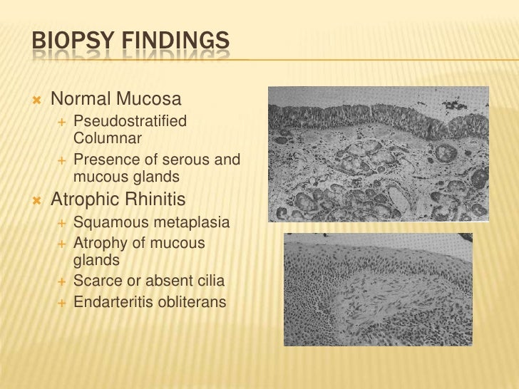 Biopsy Findings<br />Normal Mucosa<br />Pseudostratified Columnar<br />Presence of serous and mucous glands<br />Atrophic ...
