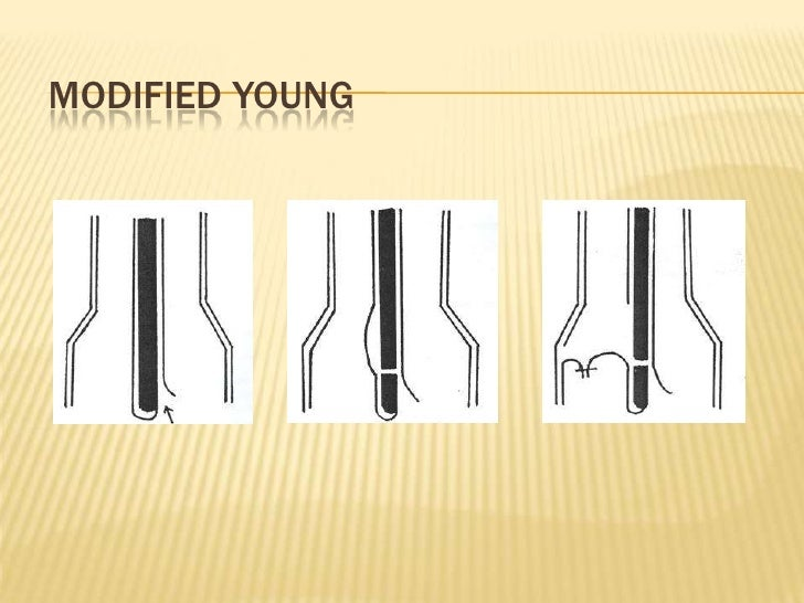 Modified Young<br />