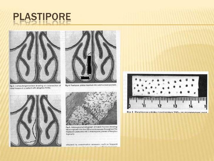 Plastipore<br />