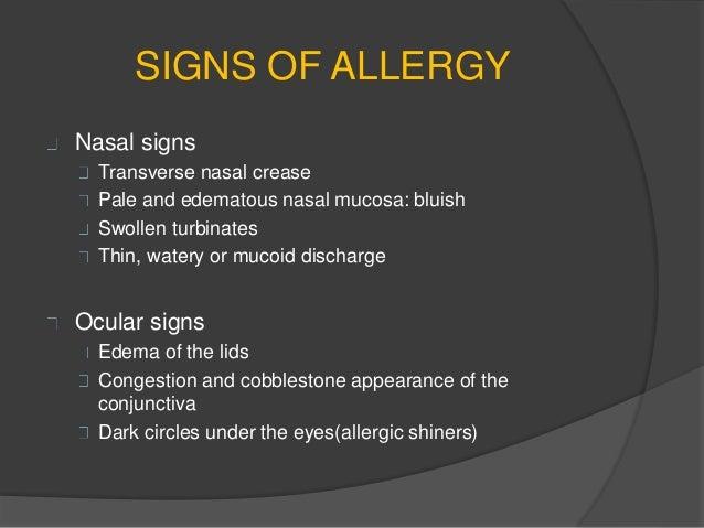 Atrophic rhinitis and Allergic rhinitis-ENT 3rd MBBS