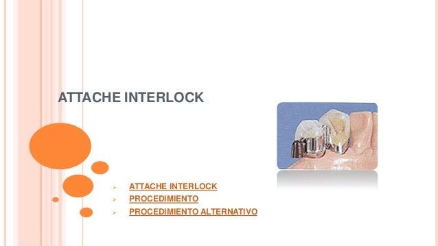 ATTACHE INTERLOCK    ATTACHE INTERLOCK    PROCEDIMIENTO    PROCEDIMIENTO ALTERNATIVO