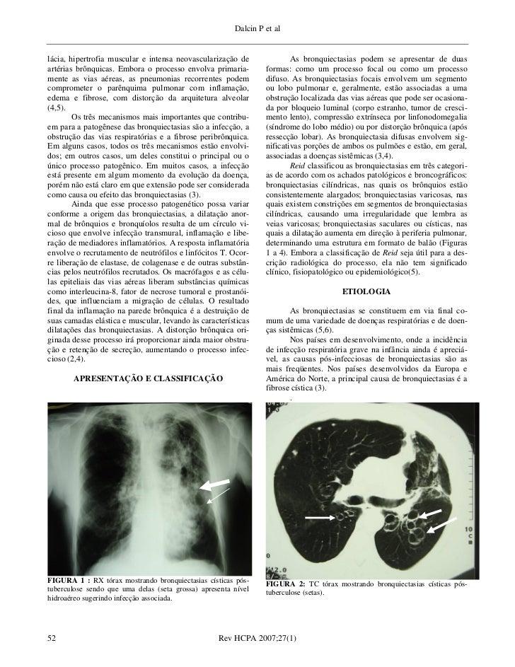 Artigos de revisao medicina