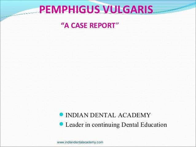 "PEMPHIGUS VULGARIS ""A CASE REPORT"" INDIAN DENTAL ACADEMY Leader in continuing Dental Education www.indiandentalacademy.c..."