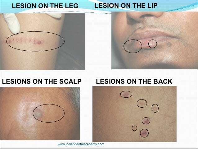 LESION ON THE LEG LESION ON THE LIP LESIONS ON THE SCALP LESIONS ON THE BACK www.indiandentalacademy.com