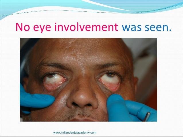 No eye involvement was seen. www.indiandentalacademy.com