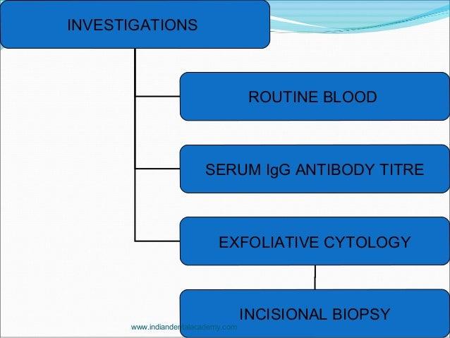 INVESTIGATIONS ROUTINE BLOOD SERUM IgG ANTIBODY TITRE EXFOLIATIVE CYTOLOGY INCISIONAL BIOPSY www.indiandentalacademy.com