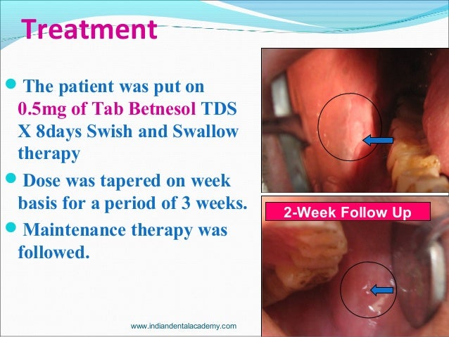 Treatment The patient was put on 0.5mg of Tab Betnesol TDS X 8days Swish and Swallow therapy Dose was tapered on week ba...