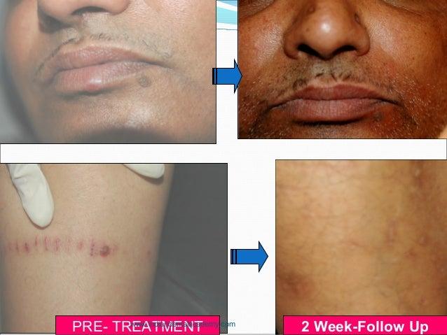 PRE- TREATMENT 2 Week-Follow Upwww.indiandentalacademy.com