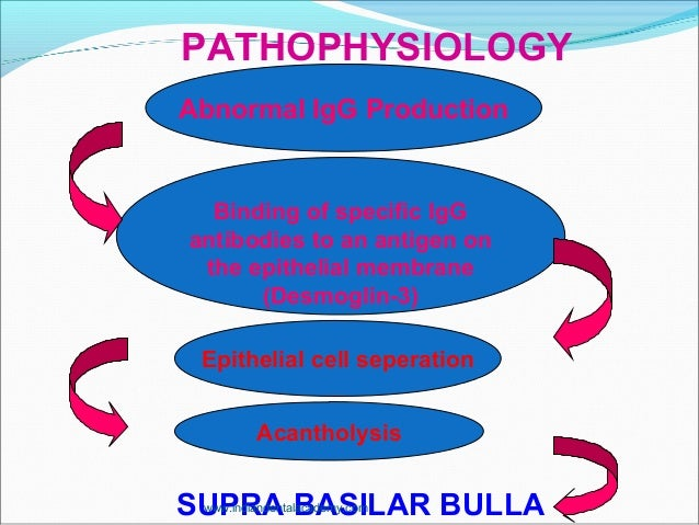 PATHOPHYSIOLOGY SUPRA BASILAR BULLA Abnormal IgG Production Binding of specific IgG antibodies to an antigen on the epithe...
