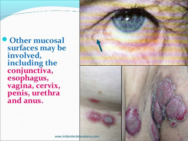 Other mucosal surfaces may be involved, including the conjunctiva, esophagus, vagina, cervix, penis, urethra and anus. ww...
