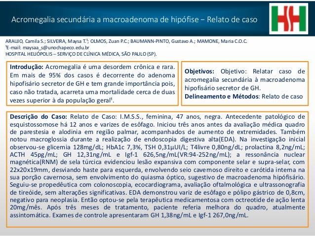 Acromegalia secundária a macroadenoma de hipófise − Relato de caso Descrição do Caso: Relato de Caso: I.M.S.S., feminina, ...