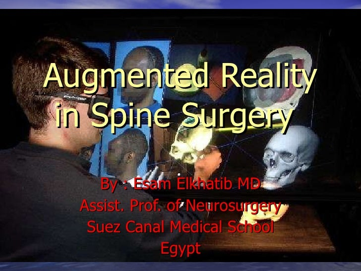 Augmented Reality in Spine Surgery   By : Esam Elkhatib MD Assist. Prof. of Neurosurgery Suez Canal Medical School Egypt