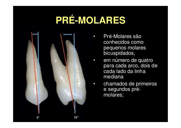 Premolares Superiores Slide 2
