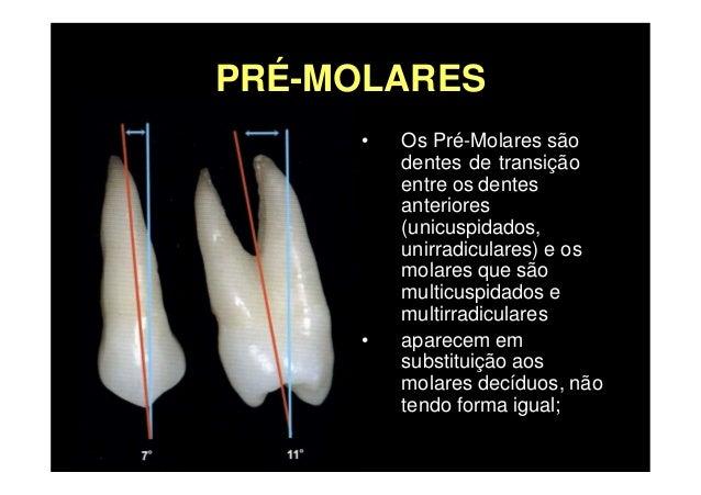 Premolares Superiores Slide 3