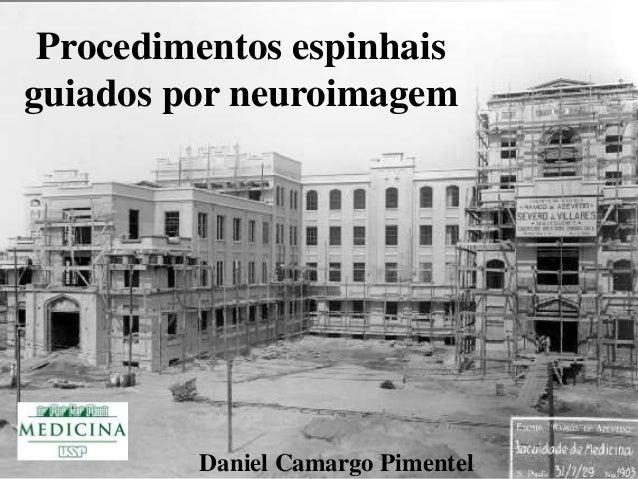 Procedimentos espinhais  guiados por neuroimagem  Daniel Camargo Pimentel