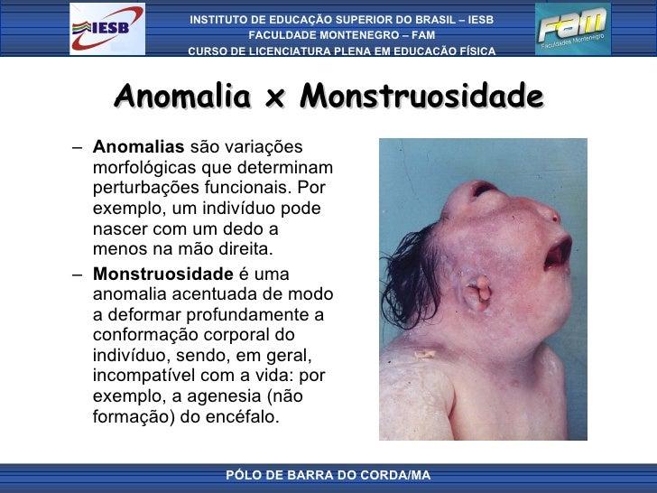 Anomalia x Monstruosidade <ul><ul><li>Anomalias  são variações morfológicas que determinam perturbações funcionais. Por ex...