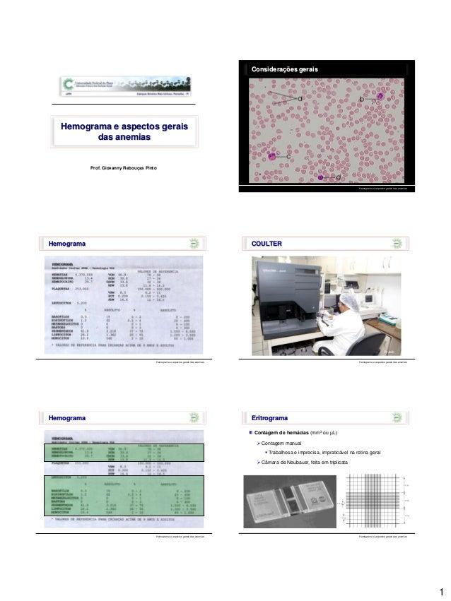 1 Prof. Giovanny Rebouças Pinto Hemograma e aspectos gerais das anemias Considerações gerais Hemograma e aspectos gerais d...